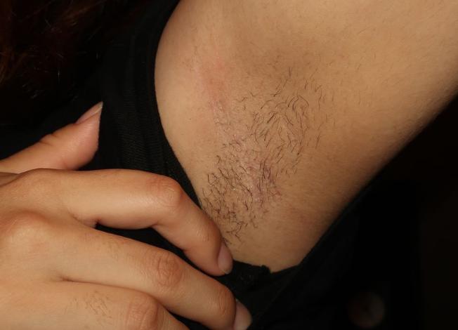 剃り残しがある臭い腋